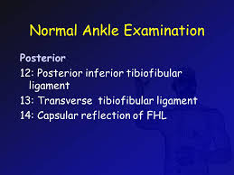 Posterior Inferior Tibiofibular Ligament Arthroscopy Of The Ankle Mr T D Tennent Frcs Orth Ppt Video
