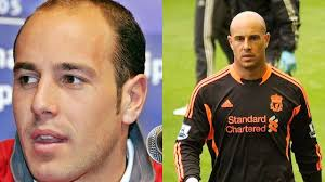shaqiri hairline losing your hair here are 10 footballers who shaved it off and