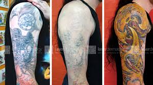 laser dermatology tattoo removal gallery