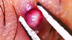 it looks like a simple ingrown hair within his chest world s best ingrown hair 2016 youtube