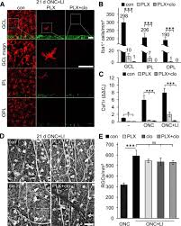 microglia are irrelevant for neuronal degeneration and axon