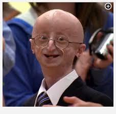 kid progeria harry potter dobby house