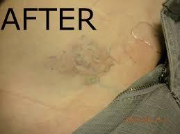 www tattoovanishinc com tattoo vanish in las vegas offers non