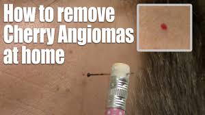 how to remove red skin dots at home quick u0026 easy cherry angioma