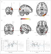 predicting treatment response in social anxiety disorder from