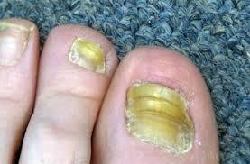 nail fungus and some treatment options u2013 toenails fungus killer