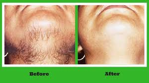 stop womens chin hair growth permanent hair removal at home ayurvedic remedy to get rid off