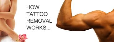 tattoo removal washington dc and chevy chase md tattoosimages us