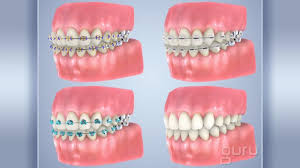 nickel free braces orthodontics jr dental care jacksonville