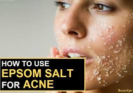 Causes Of Blind Pimples 13 Easy Ways To Get Rid Of Blind Pimple Fast