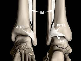 Anterior Distal Tibiofibular Ligament High Ankle Sprains U2013