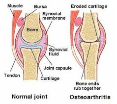 Anatomy Of The Knee Bursa Shoulder Anatomy Images Learn Human Anatomy Image
