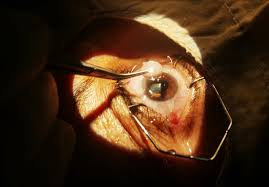 Blindness After Cataract Surgery Before During And After Cataract Surgery