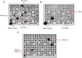 Serum Hpv detection of igg in human serum using hpv protein arrays a
