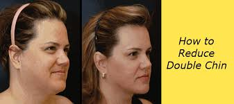 flattering hairstyles for double chins or sagging necks how to reduce double chin health unify