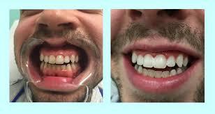 whitening awesome professional teeth whitening anhua dental led
