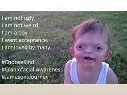 Memes Down Syndrome - mom defends son with pfeiffer syndrome against offensive internet