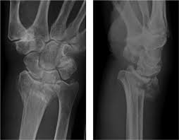 Fibular Avulsion Colles Fracture Anatomy Images Learn Human Anatomy Image