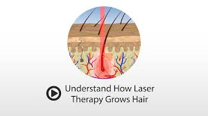 Laser Hair Growth Hat How Does Laser Hair Growth Work Theradome Grows New Hair