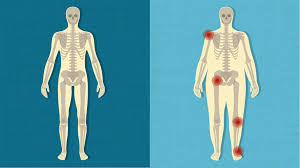 Joints Human Anatomy How Being Overweight Affects Your Joints Michigan Health Blog