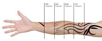 colorado springs tattoo removal tattoo removal colorado springs