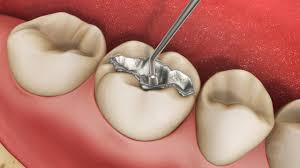 Anatomy Videos Free Download Free Dental Patient Education Videos Bitebankeducation