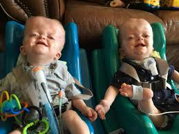 miracle foster mom adopts twins with rare genetic condition new