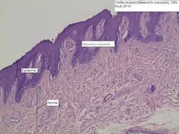 Anatomy Slides Microscope Images Pacinian Corpuscle Tactile Receptor