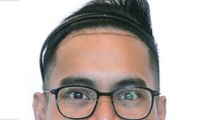 hair transplant costs in the philippines svenson philippines hair transplant procedure and services