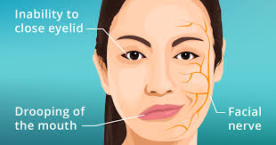 How To Know Your Going Blind Bell U0027s Palsy Causes Symptoms And Treatments Allaboutvision Com