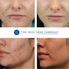 Face Acne Map Acne Canterbury Kent Just 39 Per Session Free Consultations