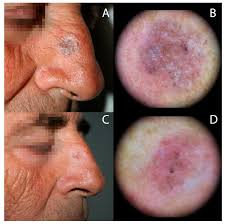 blue light therapy for skin cancer biomedicines free full text photodynamic therapy activated by