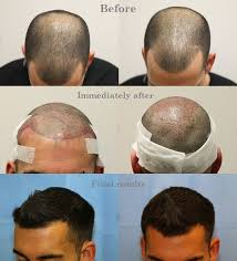 hair growth after hair transplant after follicular transfer fue