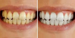 crest 3d white whitestrips with light review 15 best ways to whiten teeth at home naturally faveable