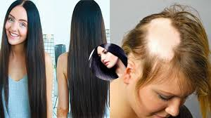 black seed for hair loss stunning black seed oil for hair loss pict of trends and serum ideas