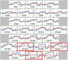 reduced prefrontal cortex hemodynamic response in adults with