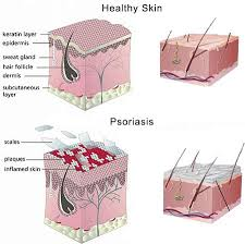 light treatment for scalp psoriasis scalp psoriasis specialists laser dermatology dermatologist nyc