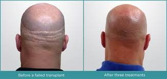 Injection In Scalp For Hair Growth Thinning Hair Hull Dermatology U0026 Aesthetics