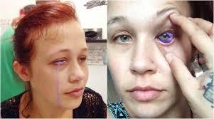 model s eyeball goes left purple tears the