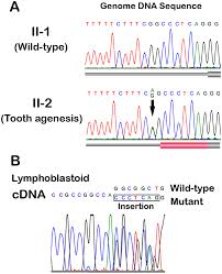 Flag Tag Dna Sequence An Aberrant Splice Acceptor Site Due To A Novel Intronic