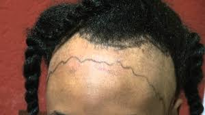hair transplant for black women black women receding hairline transplantation los gatos near san