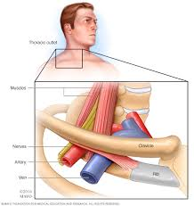 Outlet Thoracic Outlet Syndrome Symptoms And Causes Mayo Clinic