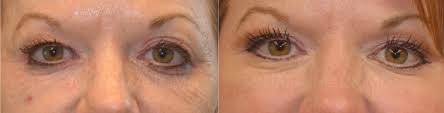prp under eye treatments u2014 naila malik md