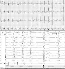 electrophysiology study for complex supraventricular tachycardia
