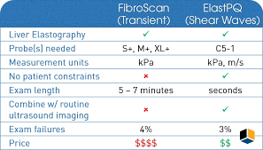 ultrasound machine comparison table liver diagnostic equipment kpi healthcare