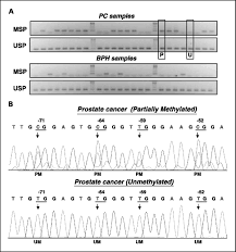 multigene methylation analysis for detection and staging of