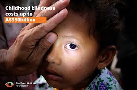 Childhood Blindness Causes Five Facts About Childhood Blindness You Need To Know Fred Hollows