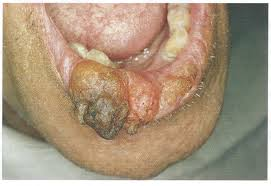 Roof Of Mouth Cancer Images by Oral Cancer U0026 Treatment Options U2013 Bondistry