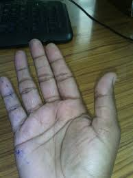 does anyone has four partitions in four fingers 3 in thumb