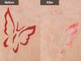 tattoo removal mclean u0026 woodbridge virginia skin u0026 laser